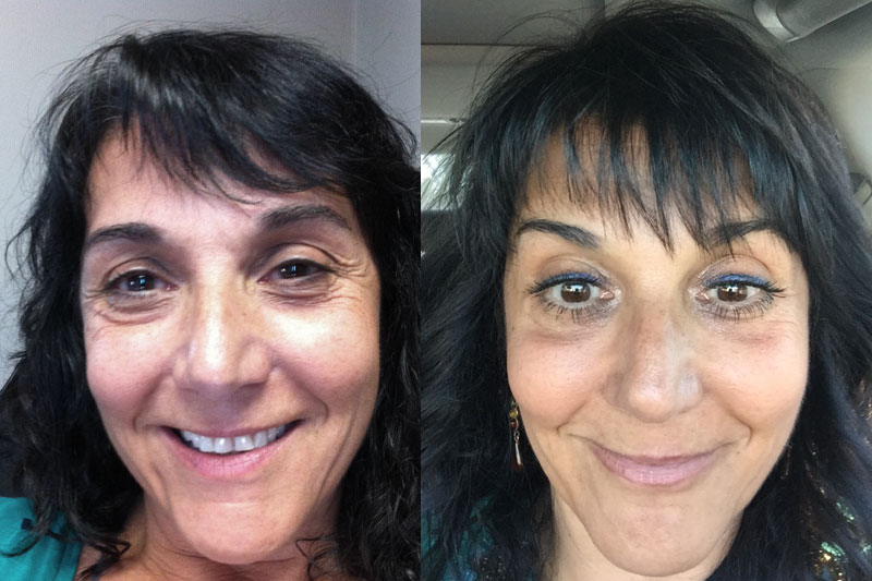 Before-and-after-treatment-with-EP