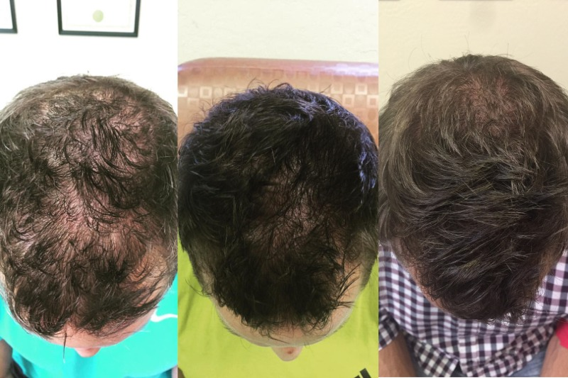 Hair-Loss-treatment-with-PRP